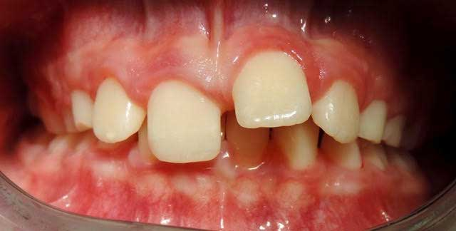 Overbite - Does my child need braces?